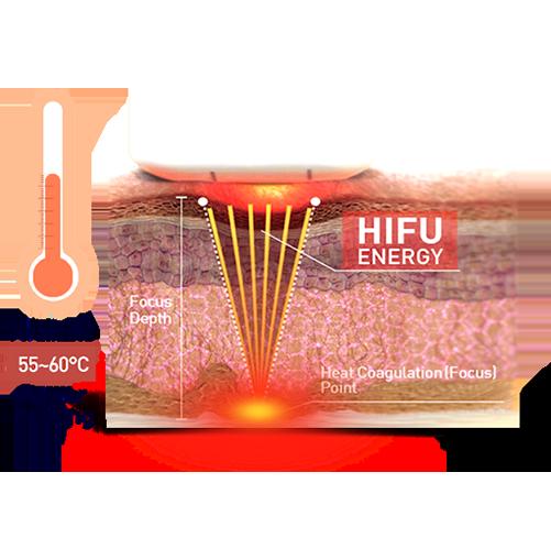 Hifu kezelés szemléltetése